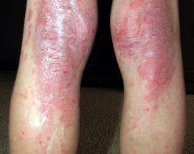 egg eczema allergies risk fish oil