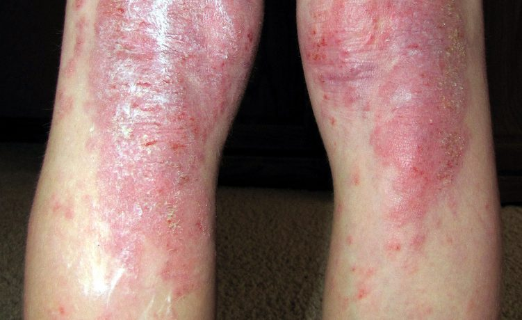 egg eczema allergies risk fish oil